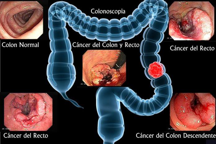Casos de cáncer de colon en Venezuela van en aumento desde hace 4 años