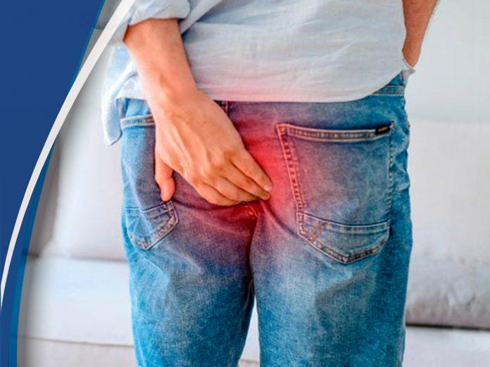 Los malos hábitos alimenticios provocan la enfermedad de las hemorroides