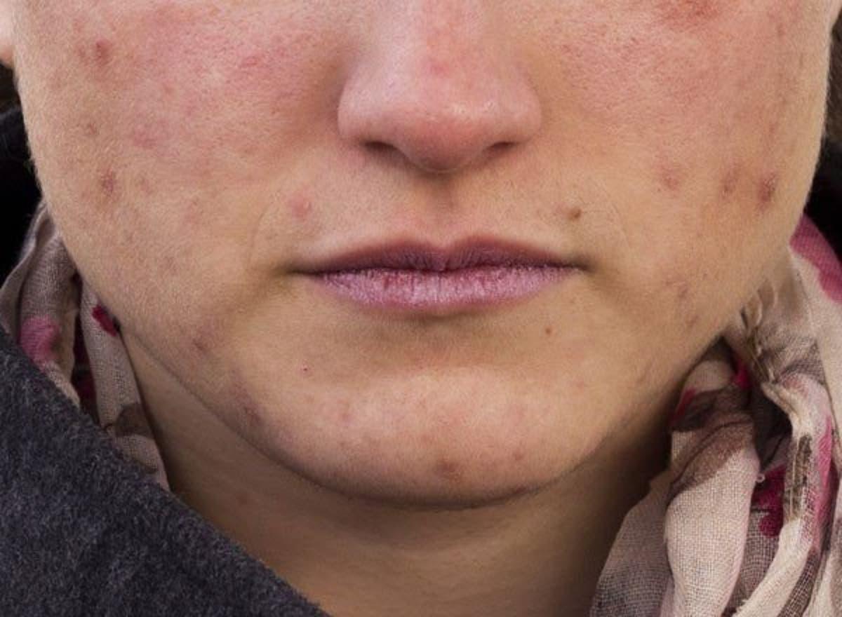 Conoce el porqué de tu acné según dónde aparece