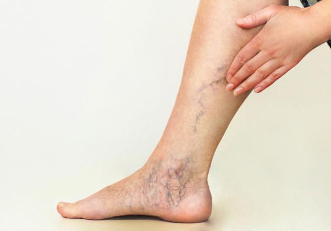 Sigue estos 8 tips para mejorar la circulación en las piernas