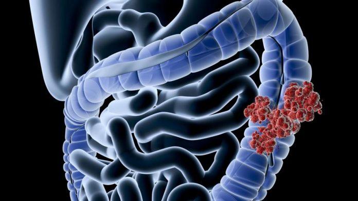 Analizan la relación entre bacterias intestinales y el cáncer de colon
