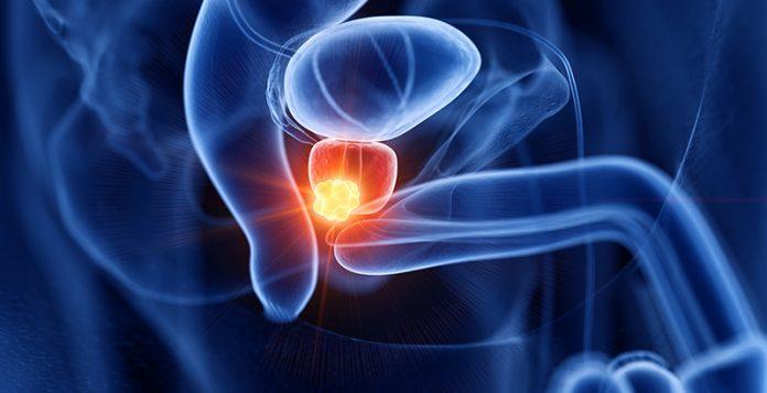 Un remedio natural que puede luchar contra el cáncer de próstata